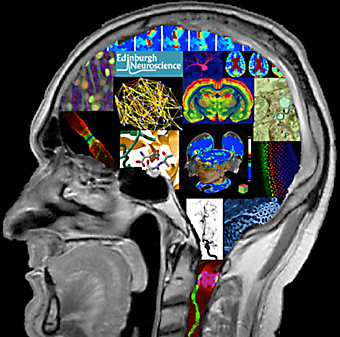 Edinburgh Neuroscience Day logo